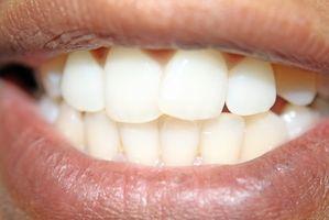 Cómo hacer los dientes más blancos en fotos